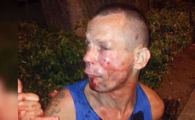 Unakazila ga: Pokušao da opljačka devojku nasred ulice, ali nije znao kome se zamerio (FOTO)