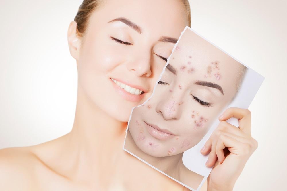 Rešite se mitisera, bubuljica i fleka na licu jednim od ovih šest efikasnih kućnih lekova