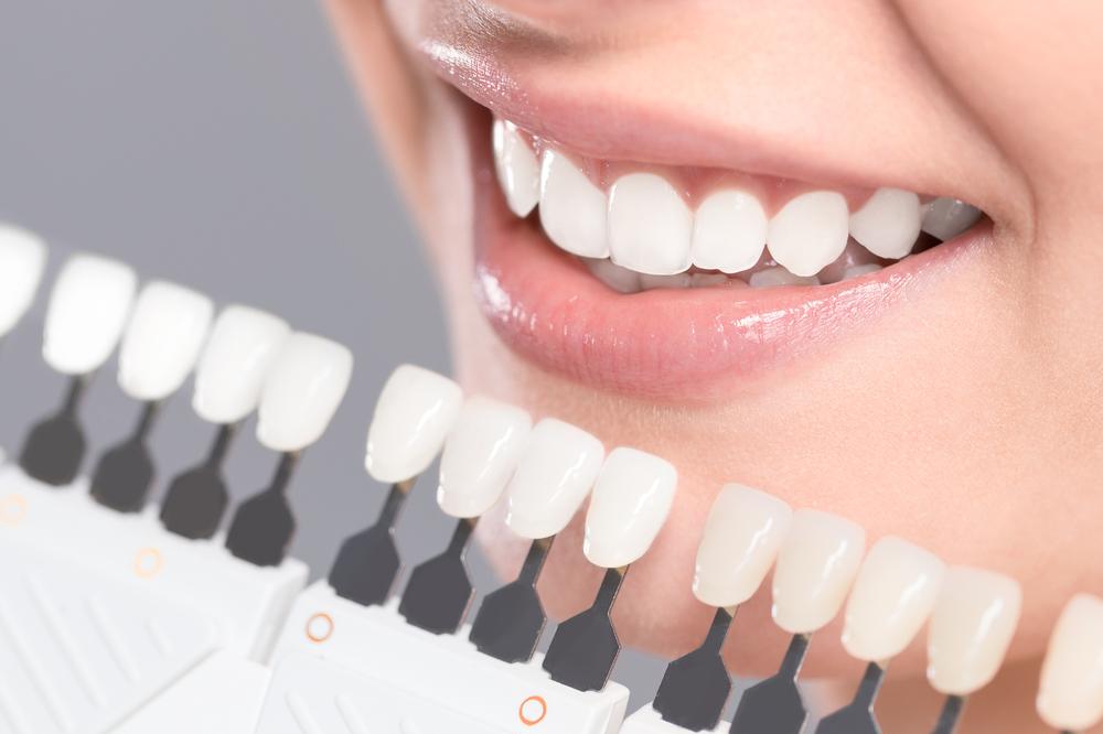 Izbelite zube smesom koju ćete napraviti sami od samo dva jeftina sastojka