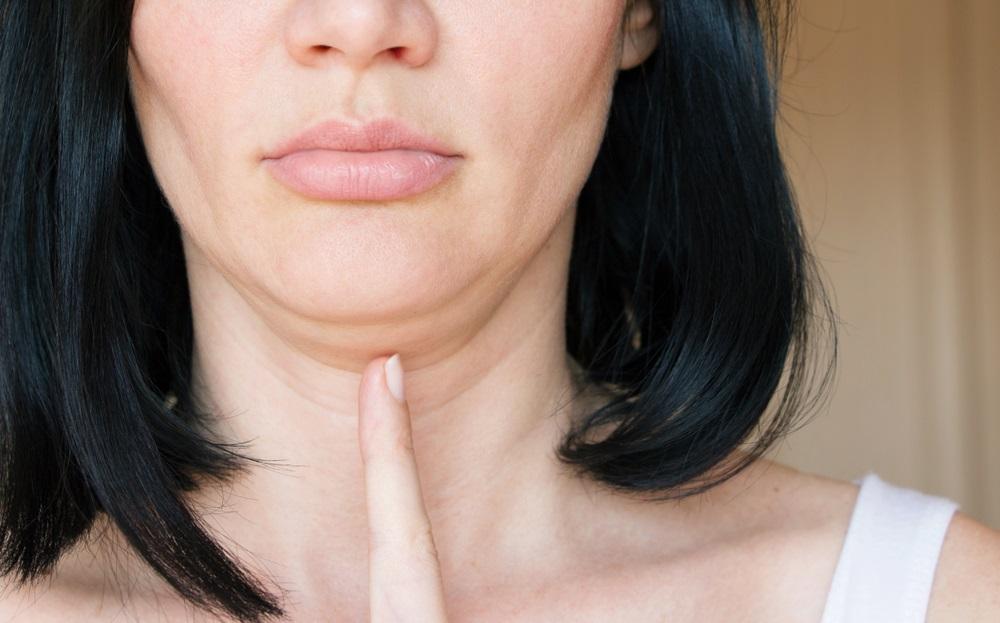 Treba vam samo pet minuta dnevno: Vežbe pomoću kojih ćete uspešno otkloniti podbradak